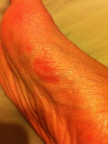 This is a blister on my right foot after 7miles this evening. I still have to run 7.2 miles tomorrow to complete my running challenge this week. Tomorrow is gonna suck pacifier and this foot is so not gonna be happy.